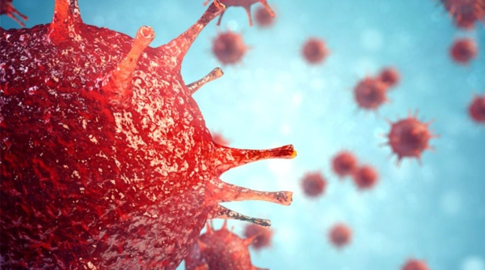 En Belirgin Koronavirüs Semptomu Belli Oldu!